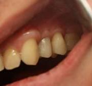 Временная коронка из пластмассы на 24 зуб для формирования десневого контура